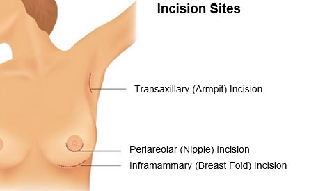 implant-incision-sites