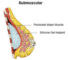 submuscular