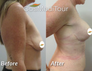 Breast Augmentation + Lift - 350cc, Round Implants, Dual plane