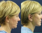 Dr. Seree Face and Neck Lift