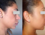 Rhinoplasty Dr. Seree, swelling still present.