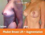 Breast Lift + Augmentation - 250cc, Round, Dual Plane Placement, Lollipop Incision