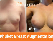 Breast Augmentation - 385cc, Round, Under the Muscle Placement, Mod Plus Profile
