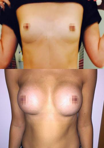 Breast Augmentation - 390cc, High Profile, Tear Drop, Dual Plane, Under the Breast Fold