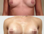 Breast Augmentation - 350cc, Moderate Plus Profile, Round, Under the Muscle, Under the Breast Fold.
