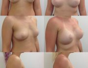 Breast Augmentation Results