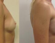 Breast Augmentation CosMediTour Phuket