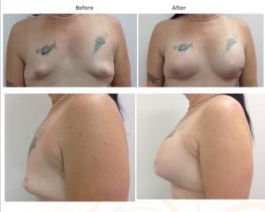breast-augmentation-cosmeditour-thailand-bangkok