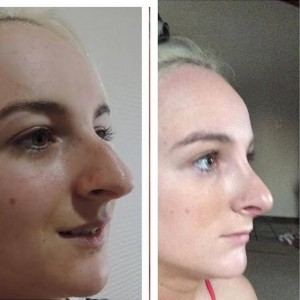 rhinoplasty-cosmeditour-before-after