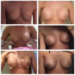 breast-augmentation-cosmeditoir-thailand