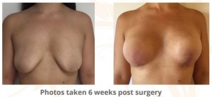 Breast-augmentation-lift-surgery2