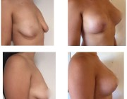 Breast Lift + Augmentation - R 300cc & L 275cc Round implant, Under the muscle, Lollipop Lift