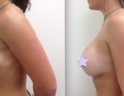 Breast Augmentation - 375cc, High Profile, Round Implants, Over the Muscle, Under the Breast Fold.