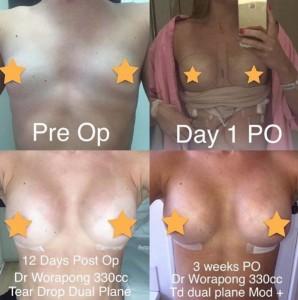 breast-augmentation-cmt1