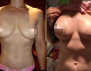 Breast Lift CosMediTour