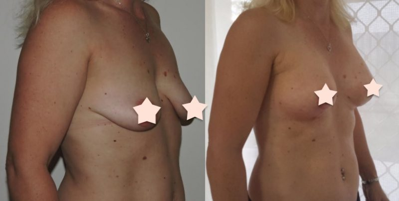 Breast Lift + Augmentation - 275cc, High Profile, Round Implants, Under the Muscle