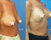 Breast Augmentation + Lift - 8 Days Post op 350cc, Round Implants