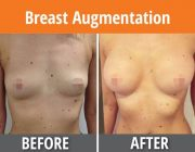Breast Augmentation - 400cc, round, moderate profile