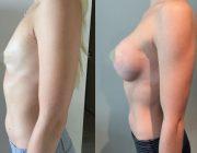 Breast Augmentation CosMediTour