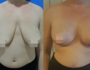 Breast Augmentation CosMedITour