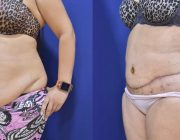 Belt Lipectomy with Liposuction
