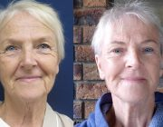 Facelift - Before and after photo