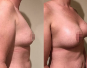 Breast Augmentation Dr Kamolwan