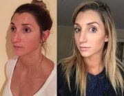 Tip Reduction Rhinoplasty (Nose Correction) Surgery Results by Dr Montien