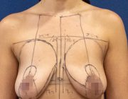 Felicity's Life Changing Breast Lift + Augmentation Surgery Video