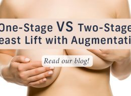two stage breast lift with implants